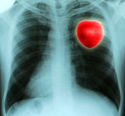 Red heart in thorax on x-ray film