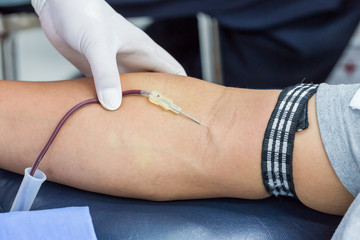 A large bore needle is inserted for blood donation