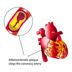 Atherosclerotic plaque