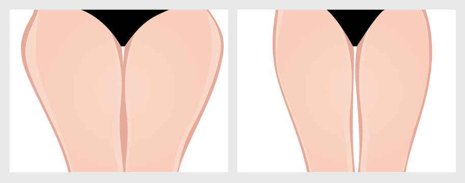 Thighs. Vector Illustration