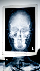 X-ray shot of the human head