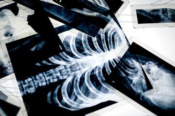 X-ray shot of the human parts