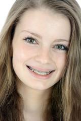 Freundliche junge Frau mit Zahnspange im Portrait