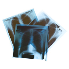 Film x-ray on white background.