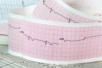 Cardiogram the concept for strokes and heart attacks
