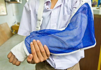 student's arm is broken