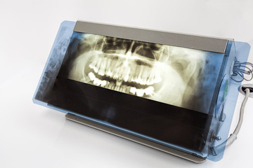 X-ray of a teeth