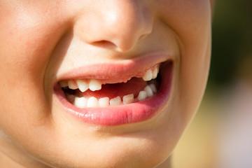 bambino che sorride senza denti