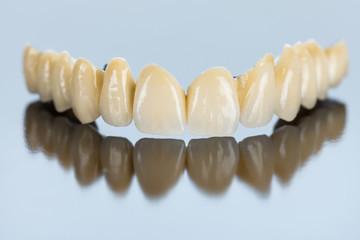 Procelain teeth on metallic basis