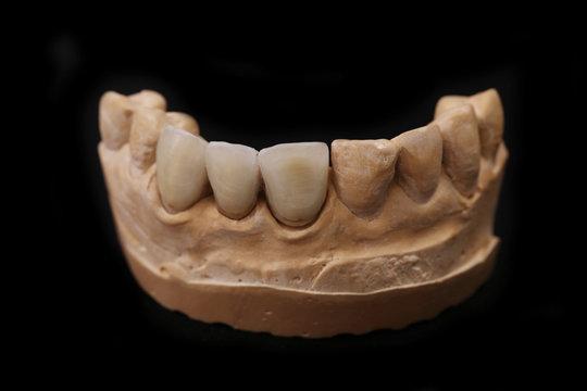 Dental Prothetic laboratory. Technical shots.