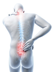3d rendered illustration of a man having a painful back and neck