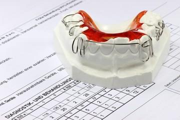 Zahnspange mit Behandlungsplan
