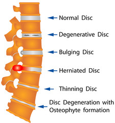 Spine. Spine conditions