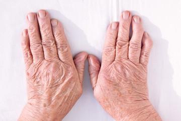 Old woman's hands geformed from rheumatoid arthritis