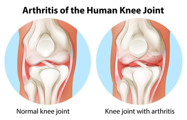 Search photos knee joint arthritis of the human knee joint ccuart Choice Image