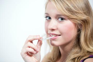 Jugendliche beim Einsetzen der Zahnspange