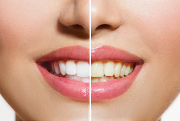 Woman Teeth Before and After Whitening. Oral Care Fototapete