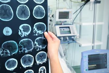 Interpretation of tomography of the brain in the ICU