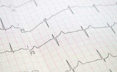 Wynik EKG
