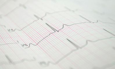 Fototapeta EKG obraz