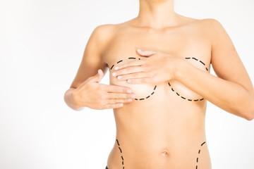 Nackter Torso einer Frau mit Markierungen für eine OP