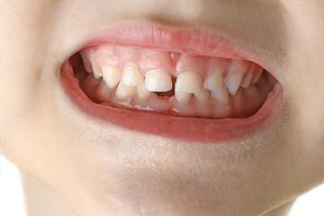 macro child teeth