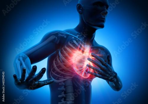 Грудной остеохондроз и аритмия сердца