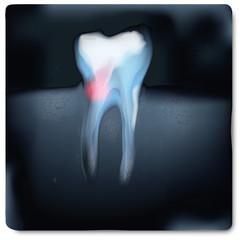 Röntgenbild mit Zahn und Zahnschmerzen