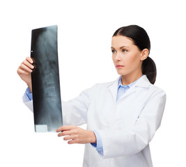serious female doctor looking at x-ray