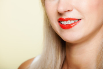 Smiling girl with braces face part teeth straighten