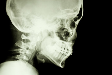 normal skull and cervical spine