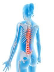 rendered illustration of a painful back