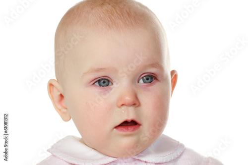 baby pink eye - 720×480