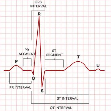 Human heart normal sinus rhythm, electrocardiogram