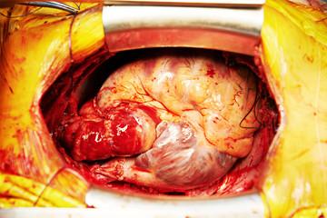 Cardiac surgery heart transplantation