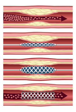 Implanting artery stent in four steps
