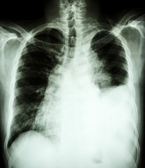 pleural effusion at left lung due to lung cancer