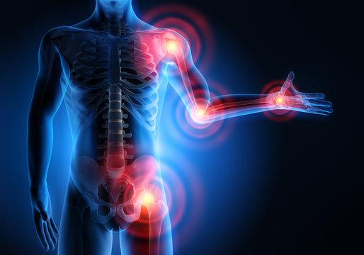 Rheuma-Schmerzpunkte