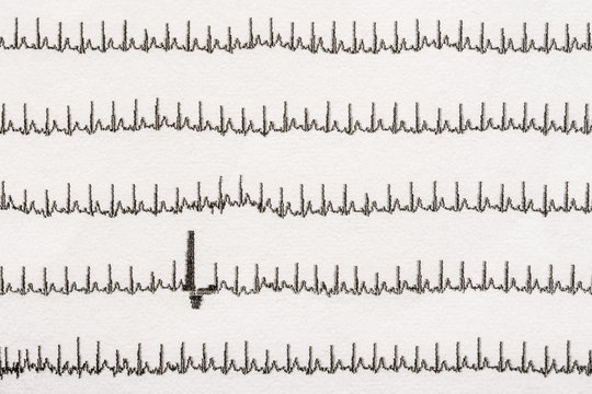 Extrasystole On Electrocardiogram Record Paper