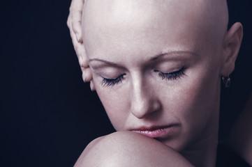 Bald-headed