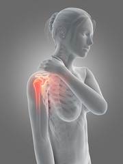 a woman having acute pain in the shoulder joint