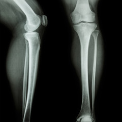 x-ray leg & knee AP(Anterior-Posterior)/lateral