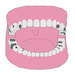 cartoon image of human teeth with fillings
