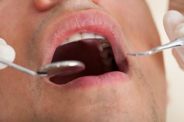 Man Going Through Dental Examination In Clinic