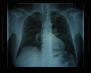 Röntgenbild Oberkörper