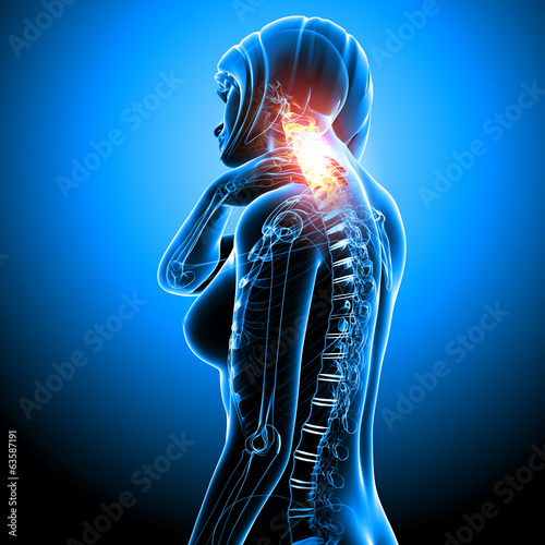 Anatomy Of Female Neck Pain In Blue Stock Photo And Royalty Free
