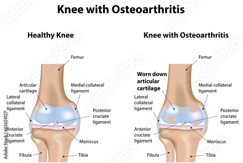 Knee Joint with Osteoarthritis Diagram\