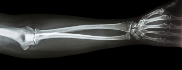 film x-ray forearm AP(antero-posterior)