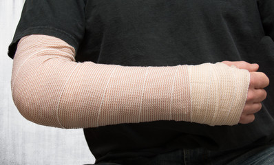 Injured arm