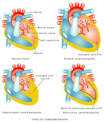 Diseases of the Heart Muscle